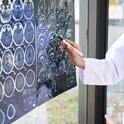 Neurology & Nerve Conduction Studies Brisbane